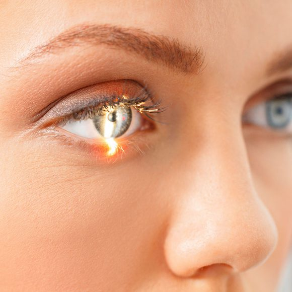 Intervento astigmatismo