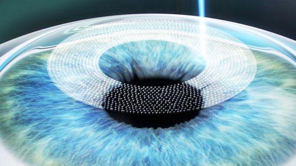 Tecnica SMILE con il nuovo laser a femtosecondi Zeiss