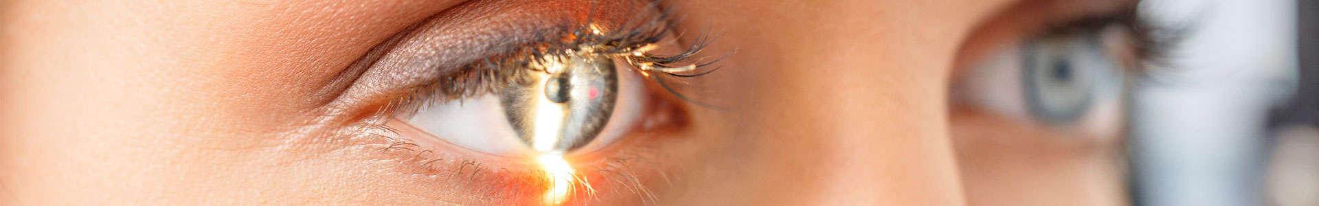 intervento-astigmatismo