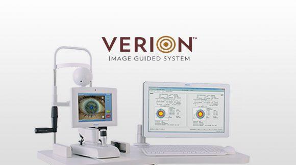 Sistema digitale Verion per la correzione dell'astigmatismo nella cataratta